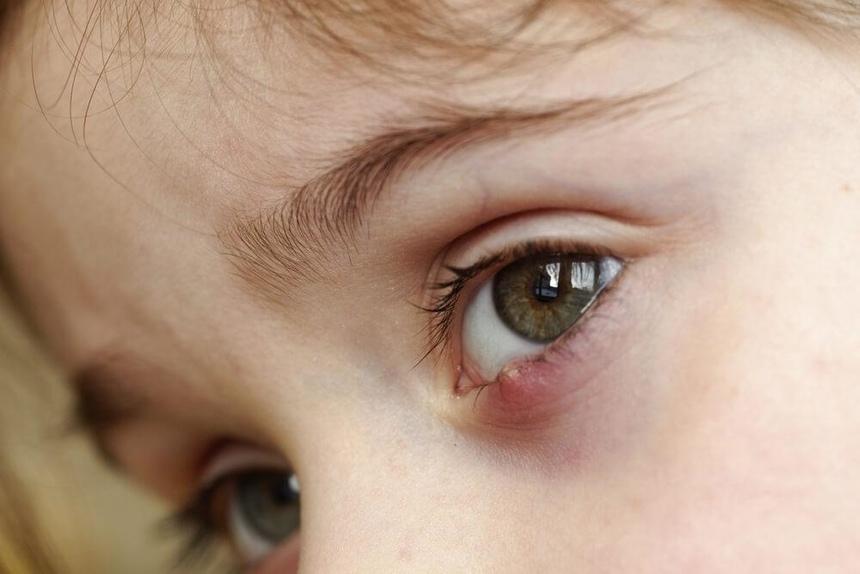 Примета о ячмене на глазу